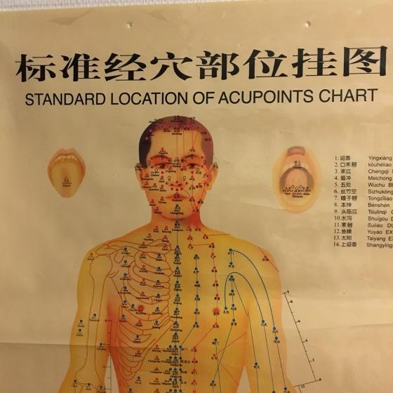 akupunkturkarta